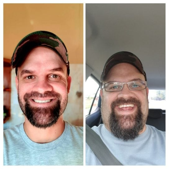 Keto Diet & Intermittent Fasting South Africa Before and After